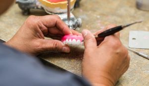 Dentures in San Diego