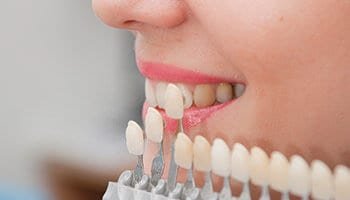 Why You Should Choose Veneers to Enhance Your Smile