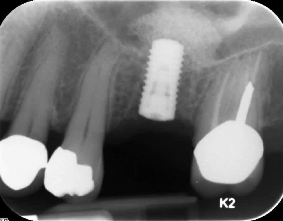 dental implant dentist