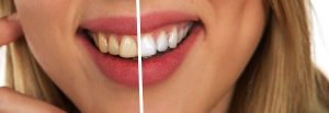 Important Facts About Flossing