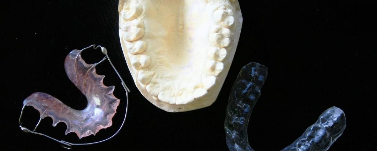 Bruxism: Causes and Treatment Options