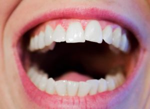 Signs That You Probably Need Orthodontic Work