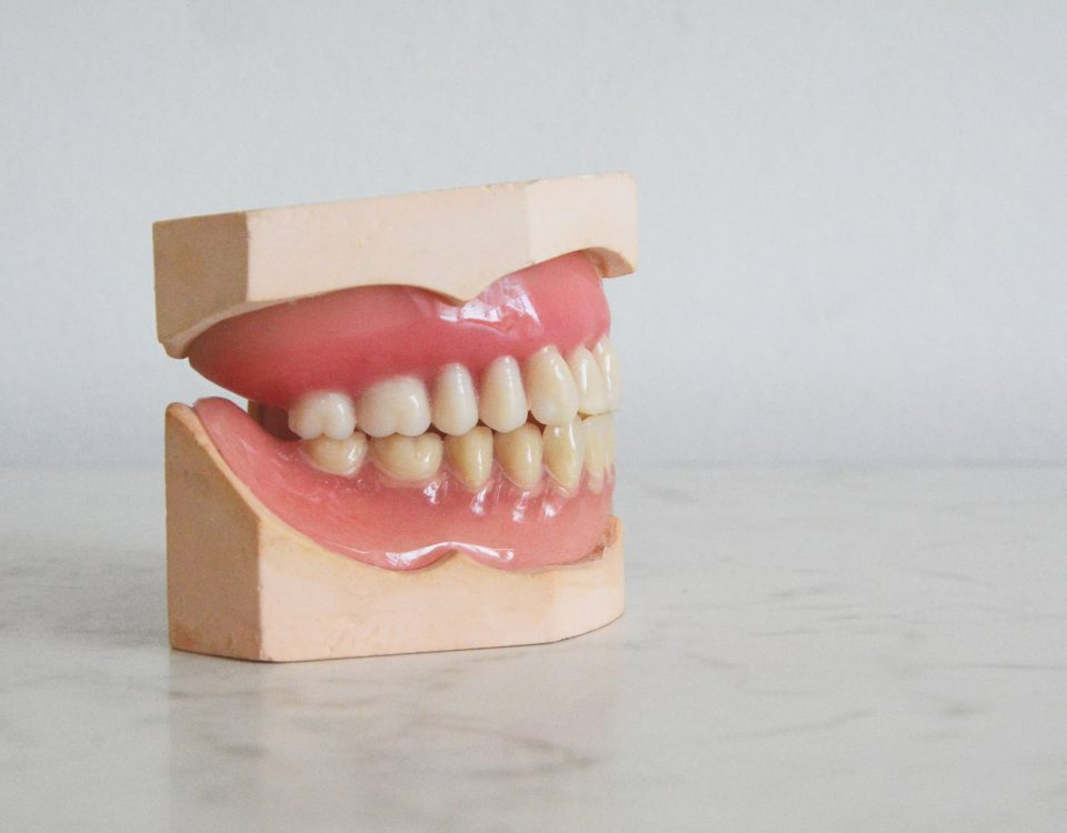 Why Dental Implants Are Better Than Dentures
