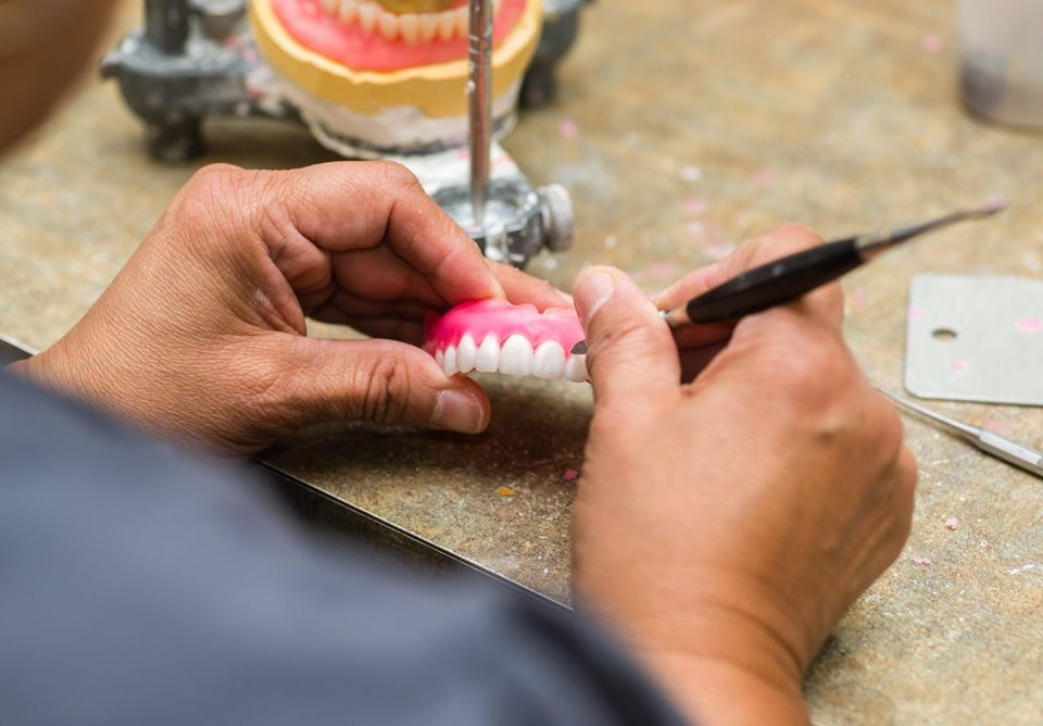 Fix Your Missing Tooth In Just One Day in San Diego