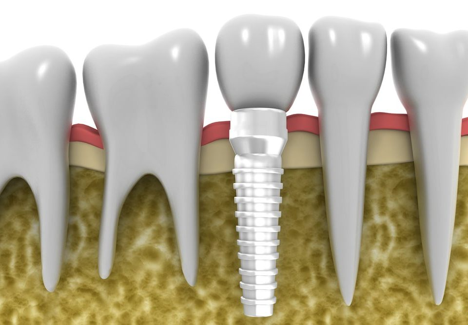 How Should You Clean Your Dental Implants